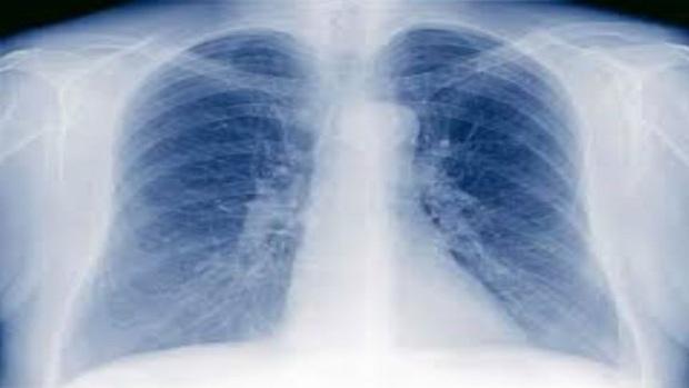 Tbc-Röntgen